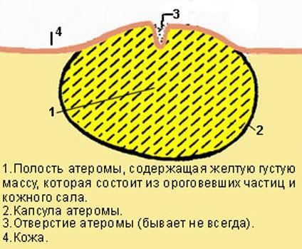 Схематическое изображение атеромы
