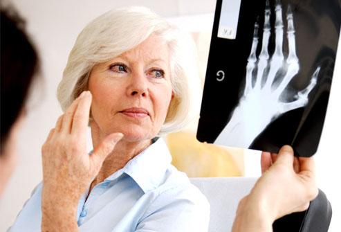 артрит и его лечение