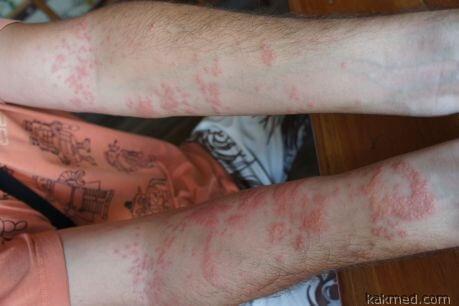 последствия укуса медузы