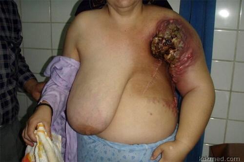 фото женьщин раком