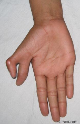 6 пальцев на руке