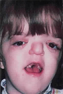 мальчик, страдающий синдромом Апера