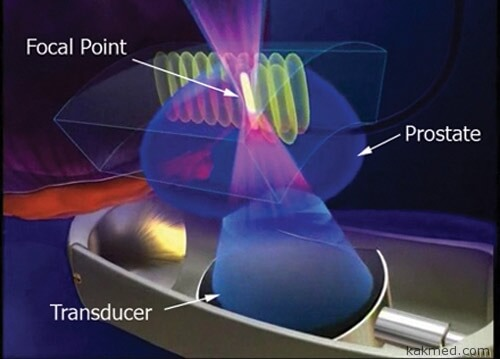 схема работы ультразвуковой пушки для лечения рака простаты