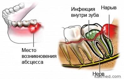 причины зубного флюса
