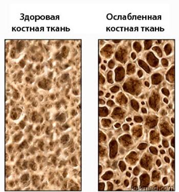 здоровая и ослабленная костная ткань