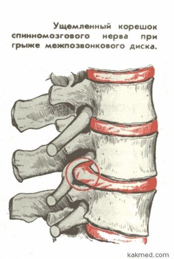 Ущемленный корешок спинномозгового нерва при грыже межпозвоничного диска