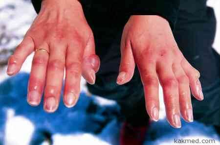 обмороженные пальцы рук