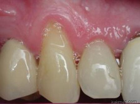 обнаженная шейка зуба