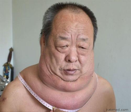 Китаец с огромной липомой