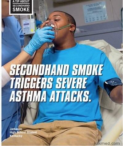 Астма из-за пассивного курения