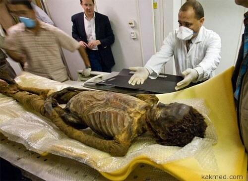 Откуда у древних людей атеросклероз?