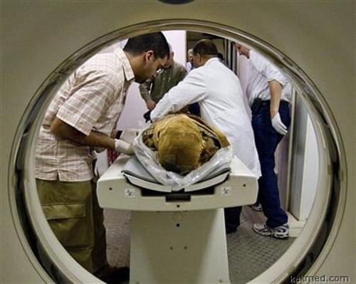 У мумий из Египта и Америки выявлен атеросклероз