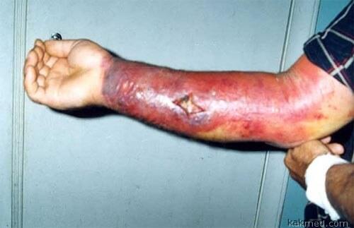 Сибирская язва у наркомана после укола ядом