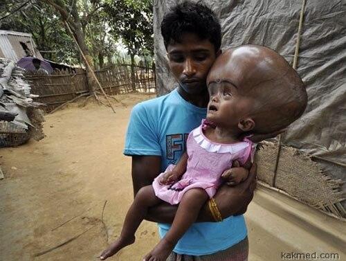 Еще один необычный ребенок в Индии