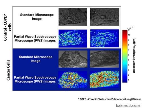 pws микроскопия в диагностике рака
