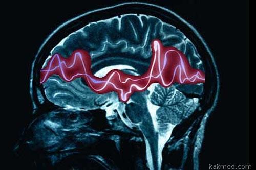 Открыт секрет фокальной эпилепсии