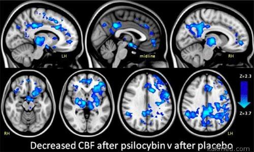 Псилоцибин и мозг