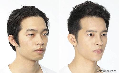 Корейские мужчины меняют лица
