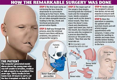Операция по пересадке лица