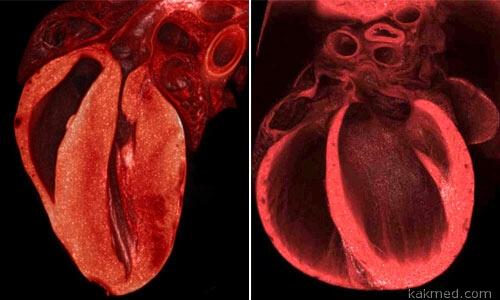 Омоложение сердца гормоном