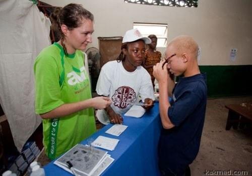 Забота об альбиносах в Африке