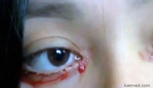 Кровавые слезы девушки из Чили