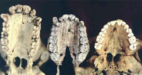 Зубы доисторических гоминид