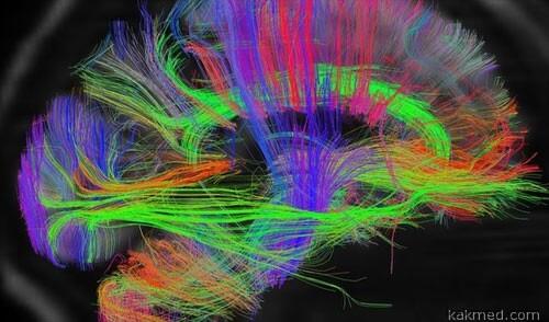 Головной мозг, принципиальная схема