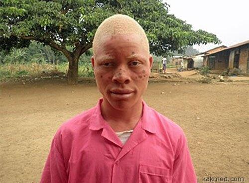 Либерийский негр альбинос