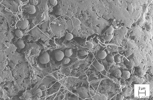 Бактерии жрут пластмассу