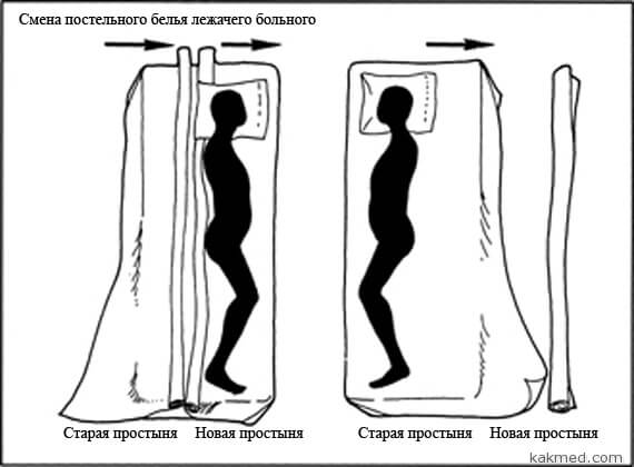 как сменить постельное белье у тяжелобольного