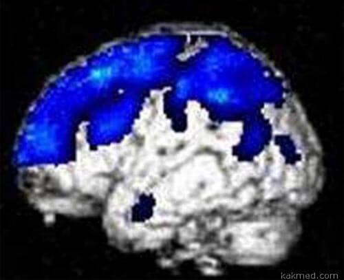 Как выглядит мозг зомби