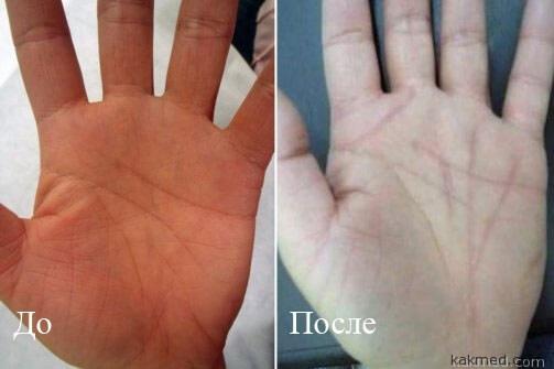 До и после исправления судьбы