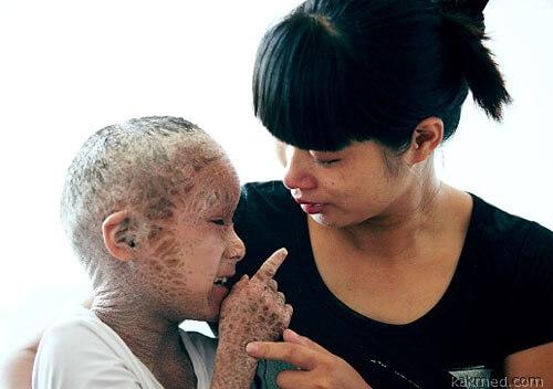 Ихтиоз. Больной из Китая