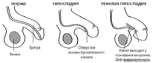 степени тяжести гипоспадии