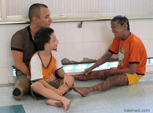 Больной ихтиозом во Вьетнаме