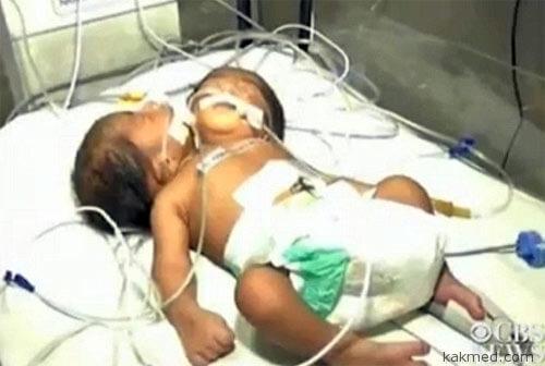 Двухголовый мальчик в Индии