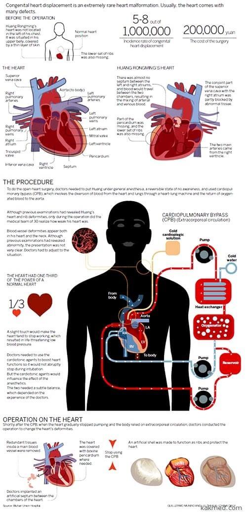 Операция по пересадке сердца с места на место