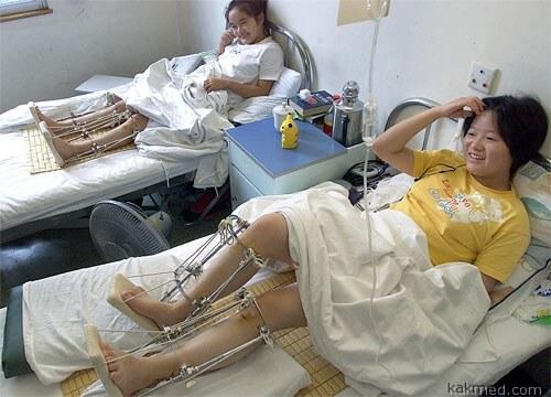 Удлинение ног в Китае