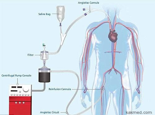 Удаление кровяного сгустка из сердца