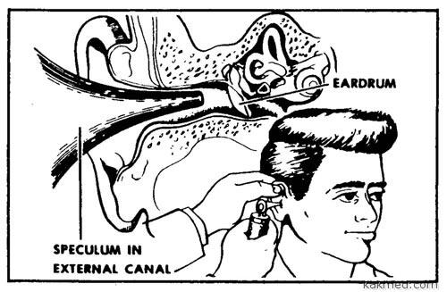 Ирригация левого уха