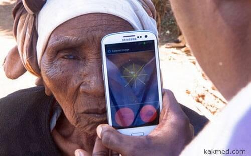 Мобильная офтальмология