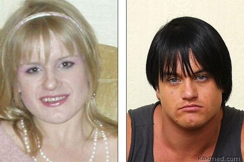 До и после приема стероидов
