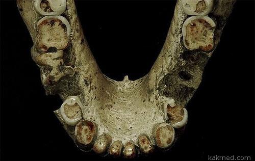 Древнегрузинская челюсть