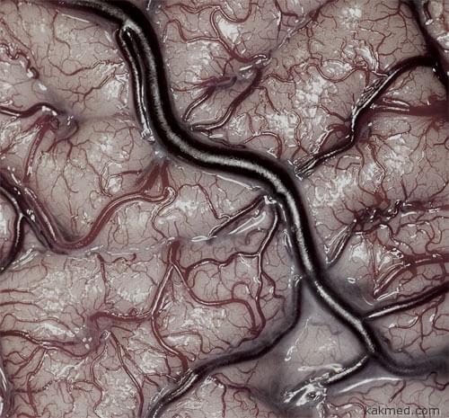 Мозг крупным планом