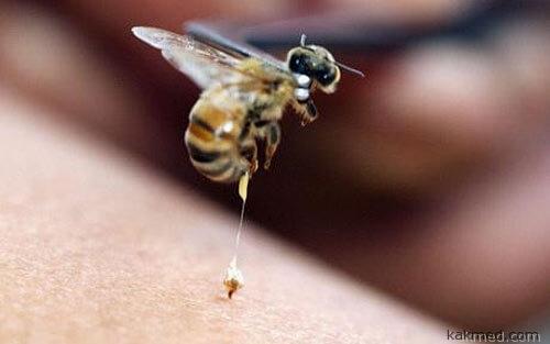 Пчелиный укус иммунная реакция