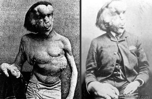 Человек-слон, синдром Протея