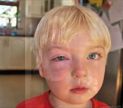Пищевая аллергия насколько это опасно?