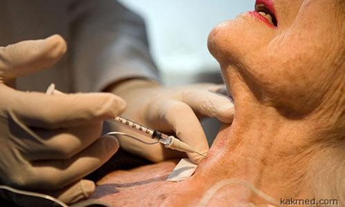 Лечение боли ботоксом