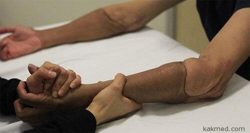 Трансплантация донорских рук
